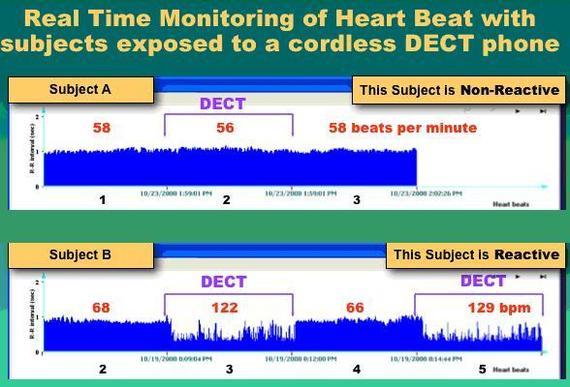 ETUDE : les téléphones sans fil DECT (et le WiFi) provoquent des irrégularités cardiaques - 23/10/2010