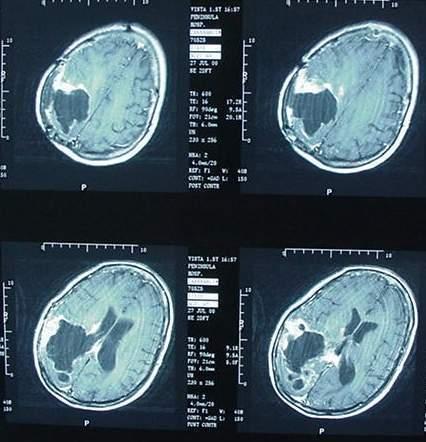 Augmentation de 40% des tumeurs cérébrales au Danemark de 2001 à 2010 - Registre du Cancer Danois - 16/12/2011
